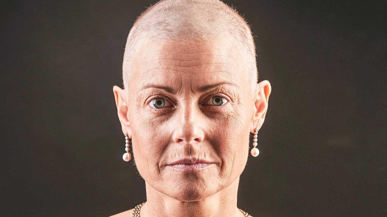 Tamoxifen and Hair Loss