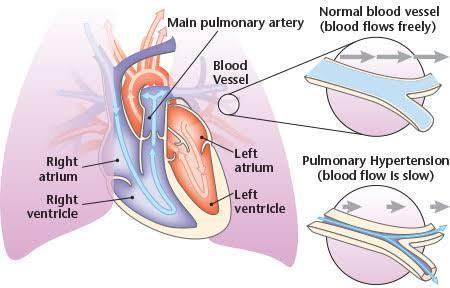 Sildenafil Dose for Pulmonary Hypertension